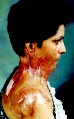 Survivor of Honour Killing