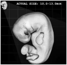 Human embryo at 40 days